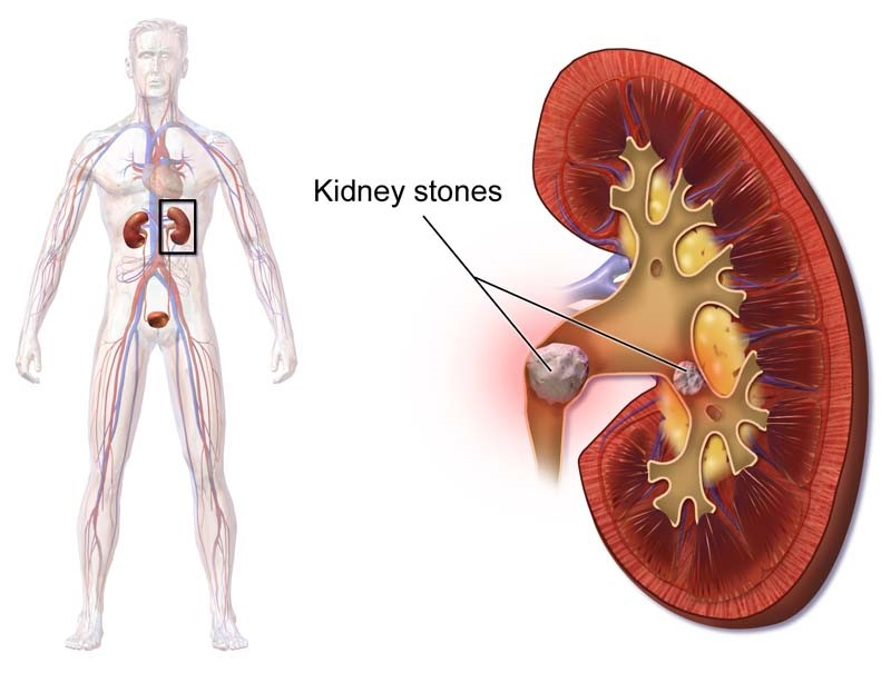 10 Symptom's Of Kidney Disease
