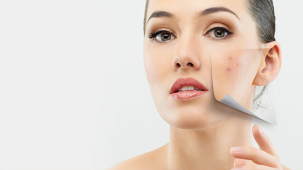 Acne and Isotretinoin for Acne Treatment